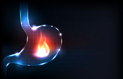 Human stomach burning Stock Image