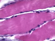 Human striated muscle under microscope. Muscular tissue at 1000 x magnification stock photos