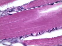 Human striated muscle under microscope royalty free stock photography