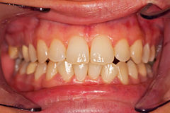 Human teeth Royalty Free Stock Images