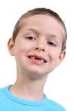 Human teeth Royalty Free Stock Photo
