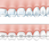 Human teeth with braces set Royalty Free Stock Image