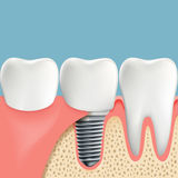 Human teeth and Dental implant. Anatomy of the oral cavity. Stoc Royalty Free Stock Image