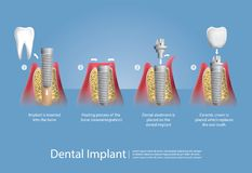 Human teeth and Dental implant. Vector Illustration Stock Photo