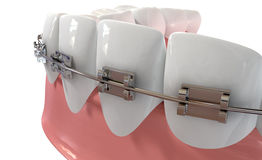 Human Teeth Extreme Closeup With Metal Braces Royalty Free Stock Image