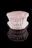 Human teeth, model Royalty Free Stock Photography