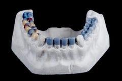 Human teeth, model Stock Photos
