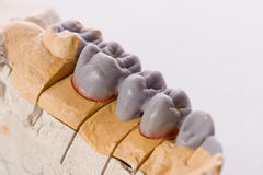 Human teeth, model Stock Photo