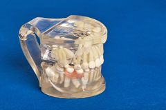 Human teeth orthodontic dental model with implants, dental braces. Human jaw or teeth orthodontic dental model with implants, dental braces Royalty Free Stock Photos