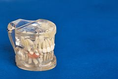 Human teeth orthodontic dental model with implants, dental braces. Human jaw or teeth orthodontic dental model with implants, dental braces Stock Photography