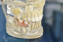 Human teeth orthodontic dental model with implants, dental braces. Human jaw or teeth orthodontic dental model with implants, dental braces Royalty Free Stock Photo