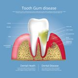 Human teeth Stages of Gum Disease. Vector Illustration Royalty Free Stock Photos