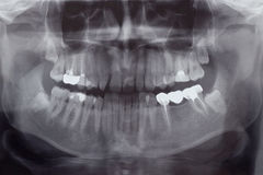 Human Teeth, X-Ray Stock Photo