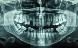 Human teeth xray royalty free stock photos