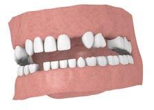 human teeths för några tänder royaltyfri illustrationer