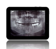 Human Teeths X-ray on the Digital Tablet Stock Photo