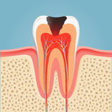 Human tooth with caries. Stock  Stock Photography