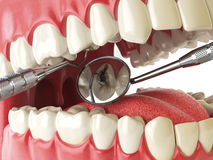 Human tooth with cariesand hole and tools. Dental searching conc Royalty Free Stock Photo