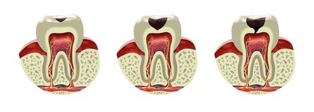 Human tooth decay disease cross section realistic view. Illustration royalty free illustration