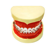 Human tooth jaw with braces. Isolated over white Stock Photos
