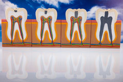 Human tooth structure, bright colorful tone concept Stock Photography