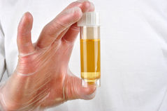 human urine in a sample bottle Stock Photo