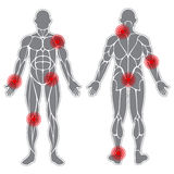 Human Weak Joints Royalty Free Stock Images