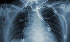 Human x-ray image of ribcage Stock Photo