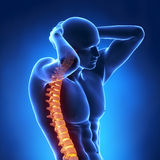 Human x-ray spine front view Stock Photos