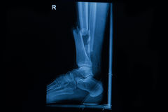 Human x-rays  showing fracture of right leg Royalty Free Stock Photography