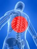 humanen smärtar ryggen Royaltyfria Bilder