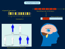 Huntington's disease. Illustration of the basic characteristics of Huntington's disease Stock Photos