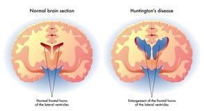 Huntingtons sjukdom stock illustrationer