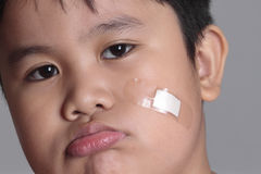 Hurt boy. Potraiture of a hurt boy with bandage royalty free stock photo
