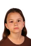 Hurt child 1. Young child with a swollen eyelid and looking very sad Royalty Free Stock Image