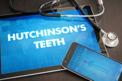 Hutchinson's teeth (cutaneous disease) diagnosis medical concept. On tablet screen with stethoscope Royalty Free Stock Photo