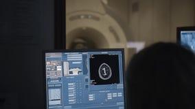 Huvud som avläser i den moderna Brain Study Laboratory Skärmar med hjärnaktivitet arkivfilmer