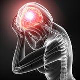 Huvudet smärtar av kvinnlig i gray Royaltyfri Bild