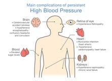Huvudsakliga komplikationer av ihärdigt högt blodtryck Royaltyfri Bild