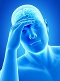 Huvudvärk/migrim royaltyfri illustrationer