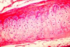 Hyaline cartilage of human trachea. Light micrograph Stock Image