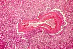 Hyaline degeneracja śledzionowa arteria Obraz Stock