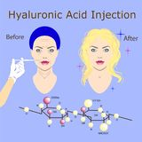 Hyaluronic acid injection, before and affect , vector illustration. Chemical formulae, two faces Royalty Free Stock Photo