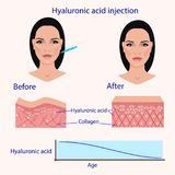Hyaluronic acid injection, before and affect , vector illustration, diagram. Hyaluronic acid injection, before and affect effect, vector illustration Stock Images