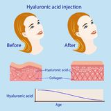 Hyaluronic acid injection, before and affect , vector illustration, diagram. Hyaluronic acid injection, before and affect , vector illustration, , diagram and Royalty Free Stock Photos