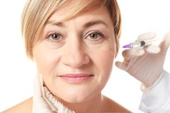 Hyaluronic acid injection for facial procedure. Hyaluronic acid injection for facial rejuvenation procedure stock image