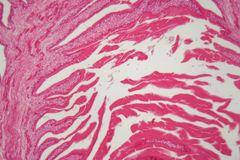 Hydatide cyst of cyclophyllid tapeworm Echinococcus. A parasite on humans and animals royalty free stock images