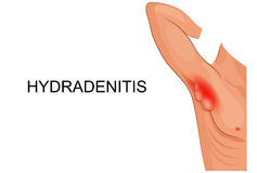 Hydradenitis. inflammation of the sweat glands. Royalty Free Stock Images