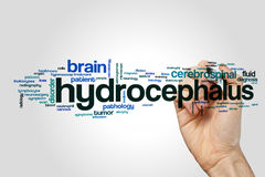 Hydrocephalus word cloud concept. Hydrocephalus word cloud on grey background royalty free stock photo