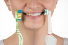 Hygiëne van de mondholte Een jong meisje kiest tussen een elec Stock Afbeelding